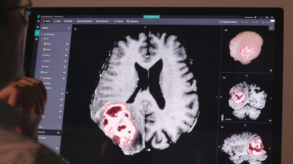 Project InnerEye screenshot on computer screen